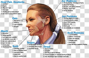 Bruxism Temporomandibular joint dysfunction Dentistry Jaw, others PNG clipart