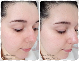 Lip balm Alpha hydroxy acid Cheek Rouge, Face PNG clipart